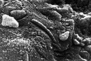 martian bacteria